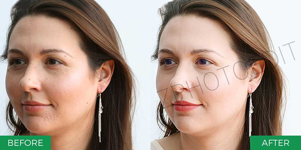 Outsource Skin Retouching Services